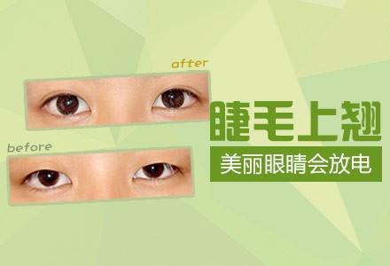 全切双眼皮 内固定 精细缝合 痕迹隐藏 打造迷人电眼