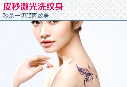 联合丽格皮秒激光洗纹身 快速洗纹身 秒杀一切顽固纹身!图片